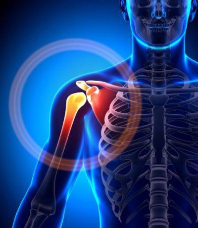 shoulder-joint-pain-azisks-arizona-phoenix